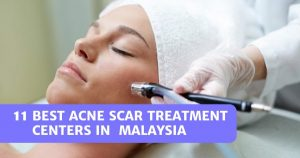Read more about the article 11 Best Acne Scar Treatment Centers In Malaysia 2021