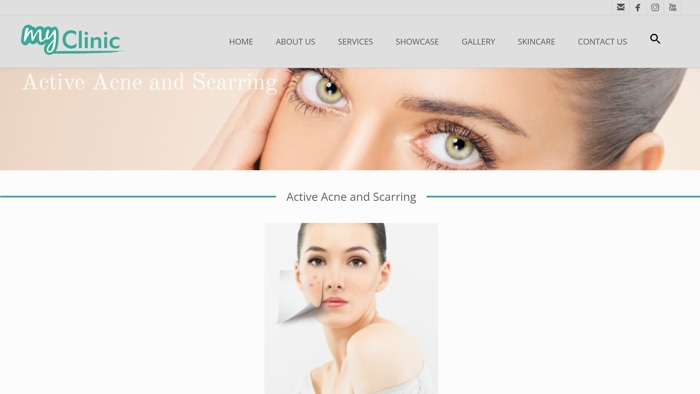 MyClinic - Active Acne And Scarring